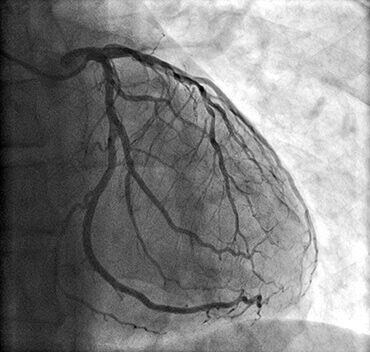 Dr Hugh Wolfenden Coronary Artery Surgery Featured Image